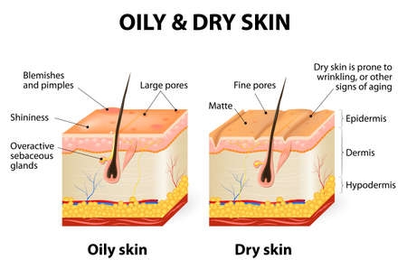 Ilustración de Oily & dry skin. Different. Human Skin types and conditions. A diagrammatic sectional view of the skin. - Imagen libre de derechos
