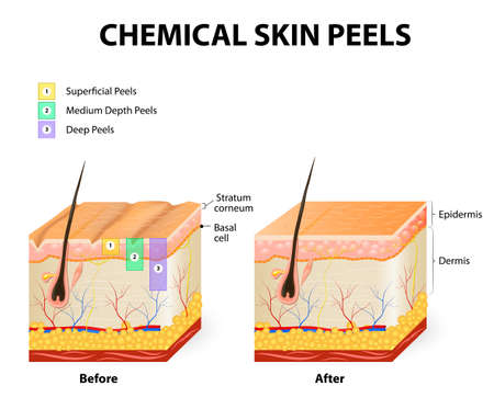 Illustrazione per chemical peeling or procedure chemexfoliation. Human skin layers - Immagini Royalty Free