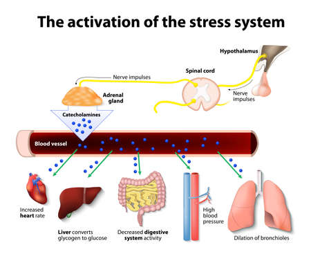 Illustrazione per Activation of the stress system - Immagini Royalty Free