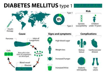 Illustration for Diabetes mellitus type 1.  - Royalty Free Image