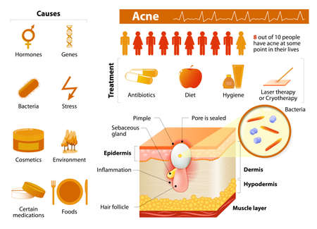 Illustration pour Acne. health problems. medicine in medical infographics. elements and icons for design. Skin layers - image libre de droit