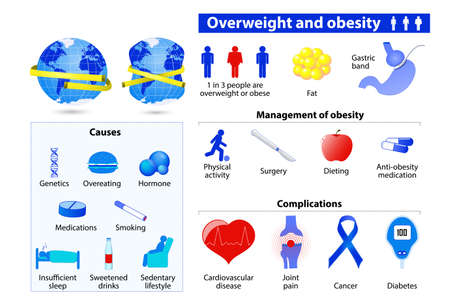 Illustrazione per Obesity and overweight infographic - Immagini Royalty Free