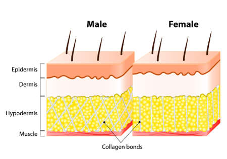 Illustrazione per Male and female Skin. Structure and Different. Man's epidermis is much thicker than a woman's. In women, the collagen bonds vertically. In men, where the compartment walls run diagonally in a crisscross pattern - Immagini Royalty Free