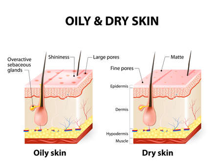 Illustrazione per Oily & dry skin. Different. Human Skin types and conditions. A diagrammatic sectional view of the skin. - Immagini Royalty Free