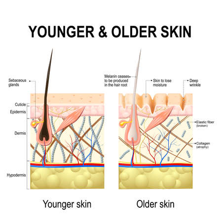Illustration pour Human skin changes or ageing skin. A diagram of younger and older skin showing the decrease in collagen fibers, atrophy and broken elastin, formed wrinkles, hair becomes gray in the elderly. - image libre de droit