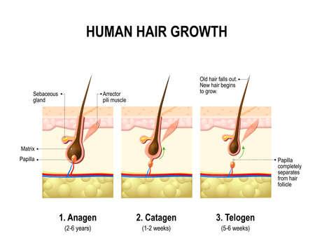Ilustración de Hair growth. anagen is the growth phase; catagen is the regressing phase; and telogen, the resting or quiescent phase. Vector diagram - Imagen libre de derechos