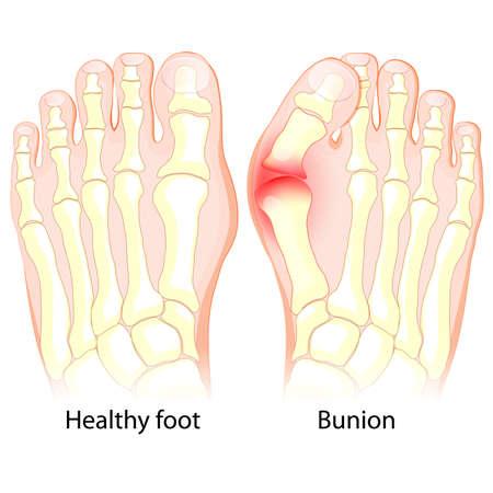 Ilustración de Healthy foot and foot with Bunion. Human anatomy. Skeleton - Imagen libre de derechos