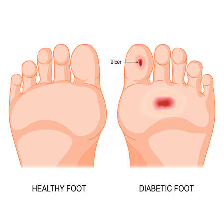 Ilustración de diabetic foot. Foot bottom pathology. Male or female sole. barefoot. - Imagen libre de derechos
