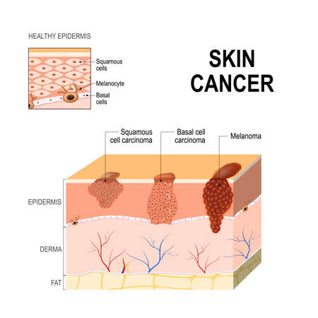 Illustration for Squamous cell carcinoma skin cancer illustration. - Royalty Free Image