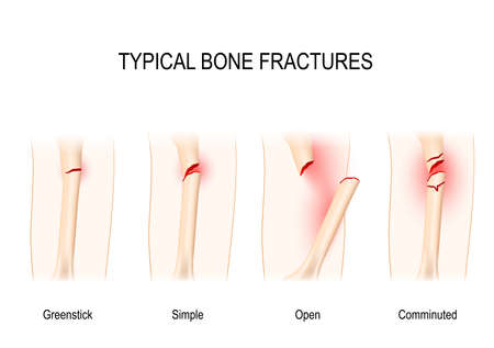 Illustration for Typical bone fractures: Greenstick, Simple, Open, Comminuted. Vector scheme - Royalty Free Image