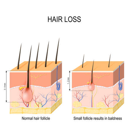 Illustration pour Hair loss (baldness). Normal hair follicle and skin with Alopecia. human skin. Vector illustration - image libre de droit