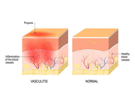 Ilustración de Vasculitis is damange of blood vessels by inflammation. Cross section of the human skin with vasculitis, and part of skin with healthy blood vesselss - Imagen libre de derechos