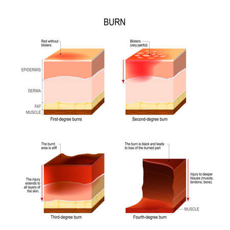 Illustrazione per skin burn. four degrees of burns. type of injury to skin. step of burn - Immagini Royalty Free