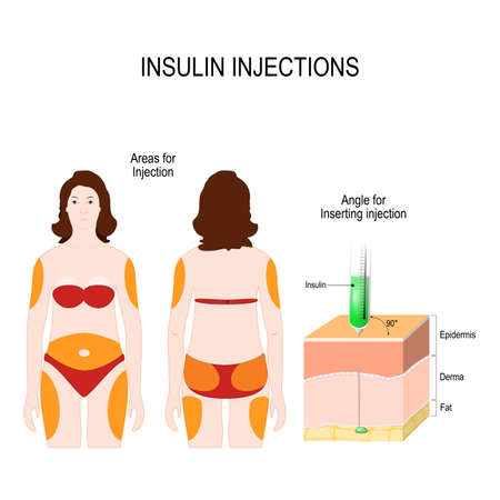 Illustration for Diabetes mellitus. insulin injections. Angle for Inserting injection and Areas for insulin Injection. vector illustration for medical use - Royalty Free Image
