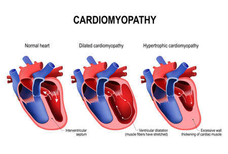 Ilustración de Types of heart diseases: hypertrophic cardiomyopathy and dilated cardiomyopathy. healthy heart and heart with Pathology. vector illustration for medical use - Imagen libre de derechos