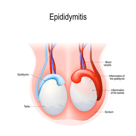 Illustration pour Epididymitis is inflammation of the epididymis of the testicle. Illustration of an adult human testicles. Vector diagram for science and medical use. - image libre de droit