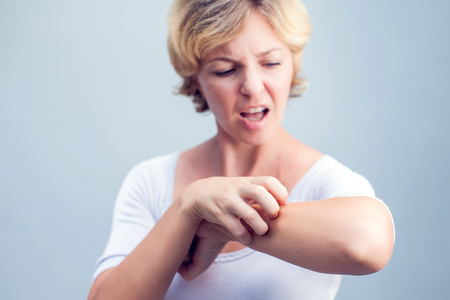 Foto de Woman Scratching an itch on white background . Sensitive Skin, Food allergy symptoms, Irritation - Imagen libre de derechos