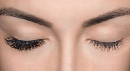Photo for Eyelash removal procedure close up. Beautiful Woman with long lashes in a beauty salon. Eyelash extension. - Royalty Free Image