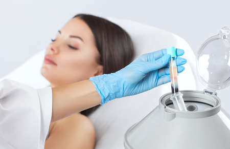 Foto de The blood tube is removed from the medical centrifuge for plasma lifting. Prp procedure. - Imagen libre de derechos