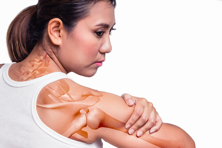 Photo pour Asian woman with shoulder pain and see the arm bone. - image libre de droit