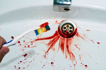 Photo pour Close up of toothbrush in male hand with traces of blood on a blood-spitted sink background. Bloody tooth brush near the stained washbasin. Bleeding gum left the trace in bathroom sink. Mouth cavity. - image libre de droit