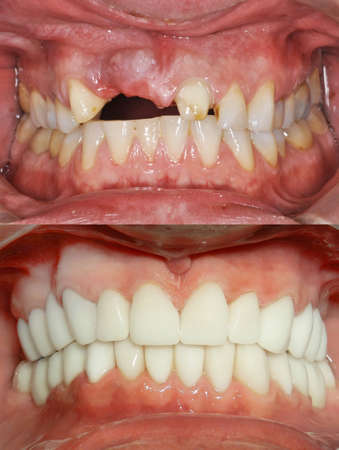 Foto de A close up of a patient's mouth at a dental clinic. Before and after - Imagen libre de derechos