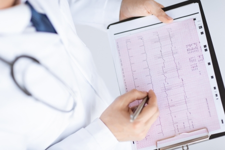 Foto de bright picture of male doctor hands with cardiogram - Imagen libre de derechos