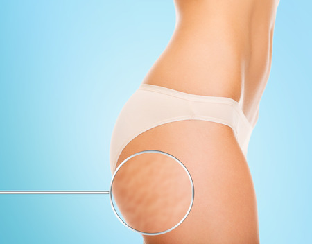 Photo for close up of woman buttocks with cellulite and magnifier over blue background - Royalty Free Image