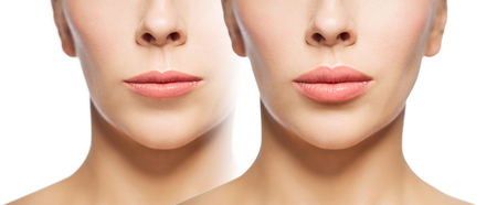 Photo for woman before and after lip fillers - Royalty Free Image