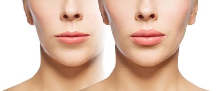 Photo pour woman before and after lip fillers - image libre de droit