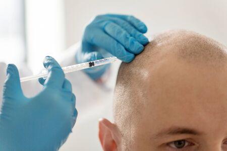 Foto de close up of hands with syringe and bald male head - Imagen libre de derechos