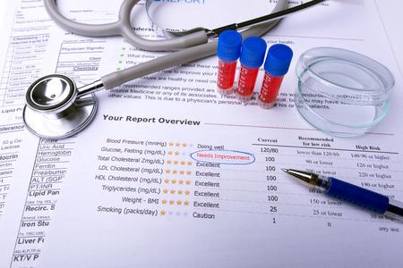 Foto de Blood in tubes with lab test result - Imagen libre de derechos