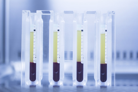 Photo pour Medical laboratory preparation of human growth factors  PRP platelet rich plasma in hospital clinic for orthopedic surgery and Traumatology rehabilitation treatment with test tubes in sterile environment. - image libre de droit