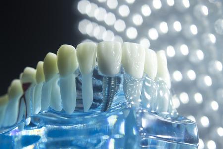 Foto de Dentists dental teeth teaching model showing each tooth, gum, root, implant, decay, plaque and enamel. - Imagen libre de derechos