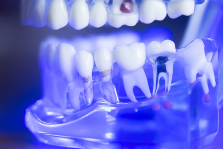 Photo pour Dental teeth orthodontic dentistry teachng model with gums, tooth enamel, root nerve - image libre de droit