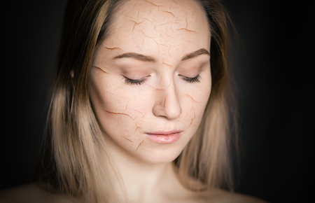 Photo pour Woman with cracked skin as a cosmetic and dehydration effect concept. - image libre de droit