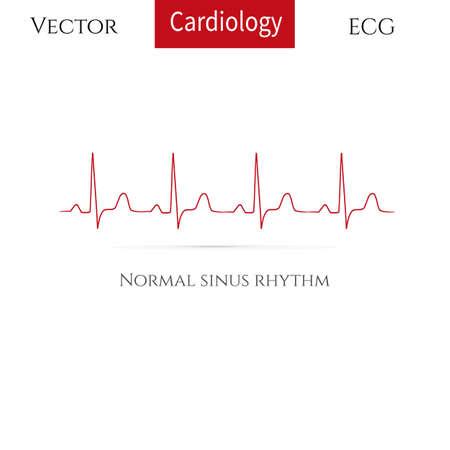 Illustration pour Normal heart rhythm, normal sinus rhythm . Vector illustration. - image libre de droit