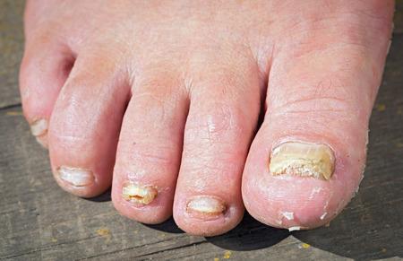 Foto de Fungus Infection on Nails of Man's Foot - Imagen libre de derechos