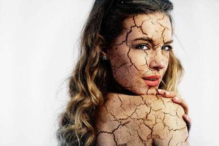 Foto de Cracked skin. Cosmetic treatment concept - Imagen libre de derechos