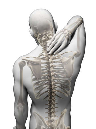 Photo for 3d rendered illustration - painful neck - Royalty Free Image