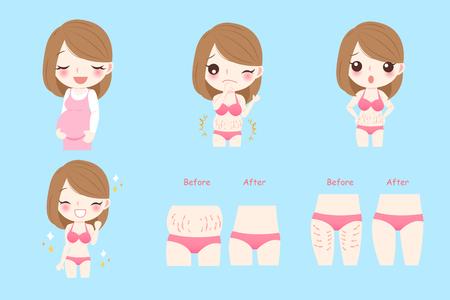 Ilustración de Cartoon pregnant woman with stretch marks concept before and after - Imagen libre de derechos