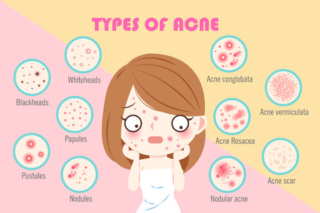 Illustration for girl with types of acne on the pink background - Royalty Free Image