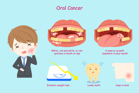 Illustrazione per businessman with oral cancer on the blue background - Immagini Royalty Free