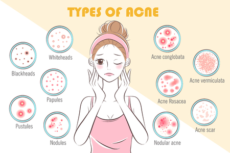 Illustration for girl with types of acne on the yellow background - Royalty Free Image