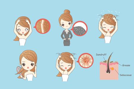 Ilustración de cartoon woman with dandruff, Healthy Lifestyle Concept - Imagen libre de derechos