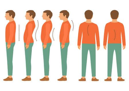 Illustrazione per scoliosis, lordosis spine disease, back body posture defect - Immagini Royalty Free