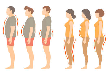 Illustration for Obesity woman and man body type, vector figure overweight - Royalty Free Image