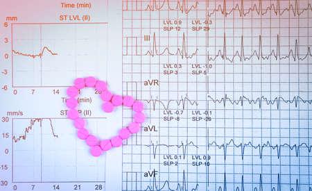 Foto de EKG or ECG (Electrocardiogram) graph report paper. EST ( Exercise Stress Test ) result and pink heart shape made from pills. Package promotion for heart check up in senior or elderly people concept. - Imagen libre de derechos