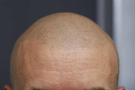 Foto de permanent make up - tricopigmentation - Imagen libre de derechos