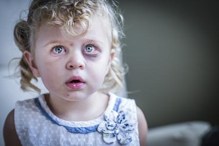 Foto de Sad and Frightened Little Girl with Bloodshot and Bruised Eyes. - Imagen libre de derechos